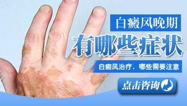 脸上和手背有白斑使用什么方法治疗好